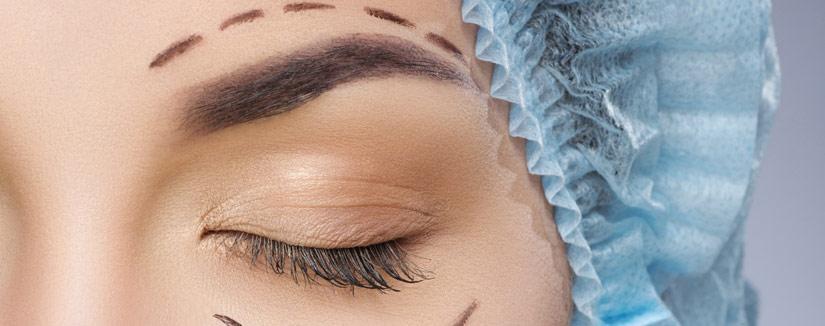 pryzmat oku article fot okuloplastyka - Problem opadających powiek