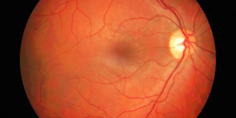 fluorescein angiography thumb 480x240 - Angiografia fluoresceinowa - co to jest