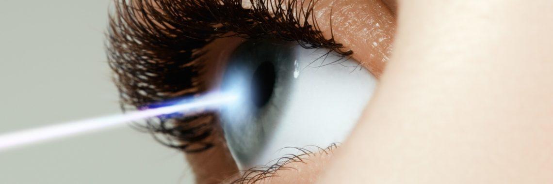 korekcja wzroku laserem